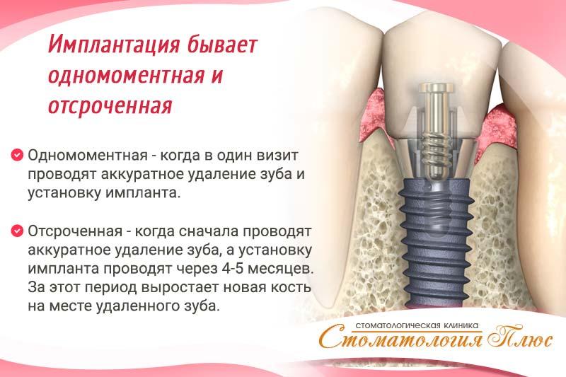 Имплантация зубов в Днепре в Стоматология Плюс