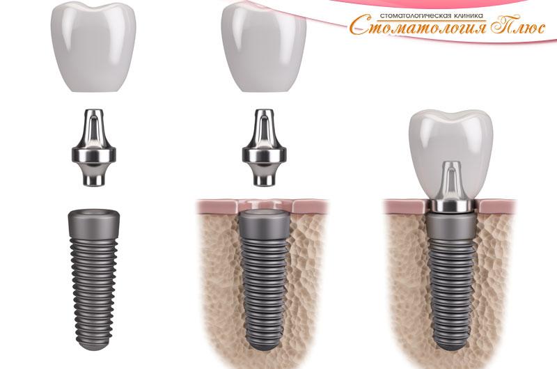 Имплантация зубов Днепр
