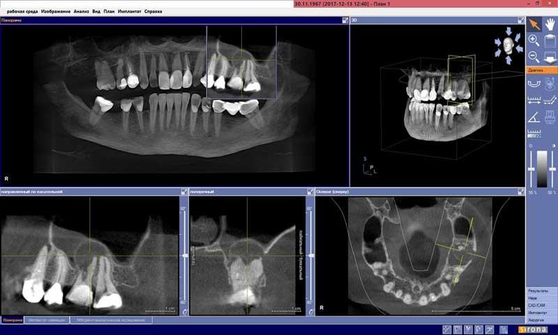 Изображение дентальной томографии