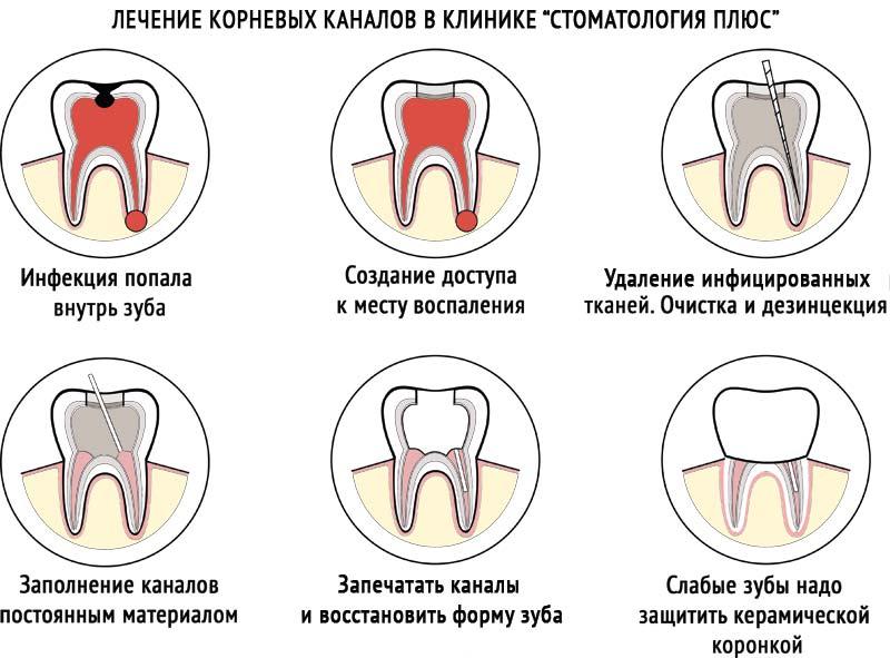 лечение корневых каналов зубов как происходит
