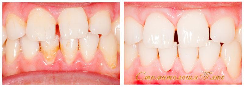Результаты домашнего отбеливания зубов после полной чистки зубов от налета и зубного камня в Днепре
