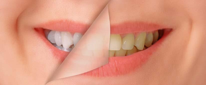 Отбеливание зубов в Днепре и его результаты