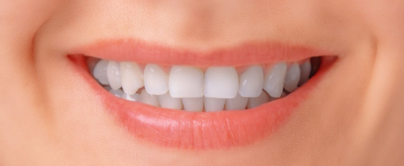 otbelivanie-zubov-v-Dnepre-after