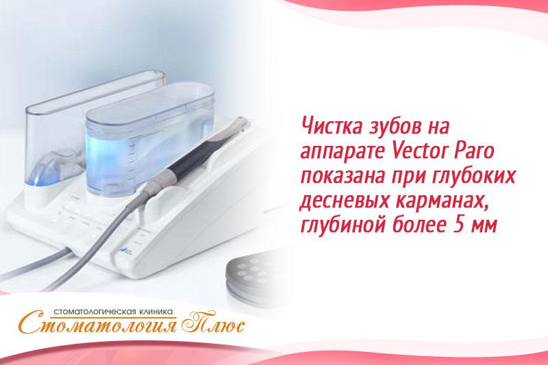 Внешний вид аппарата Вектор для глубокой чисткизубов когда глубокие карманы в десне