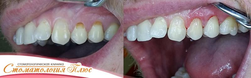 Фотография результатов нашей работы - лечение зубов в Днепре