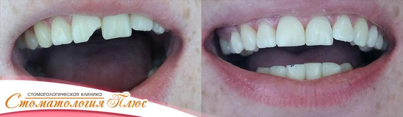фотография нашей работы - лечения зуба устранение скола