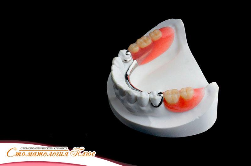 Изготовление съемных протезов в Днепре в стоматологии