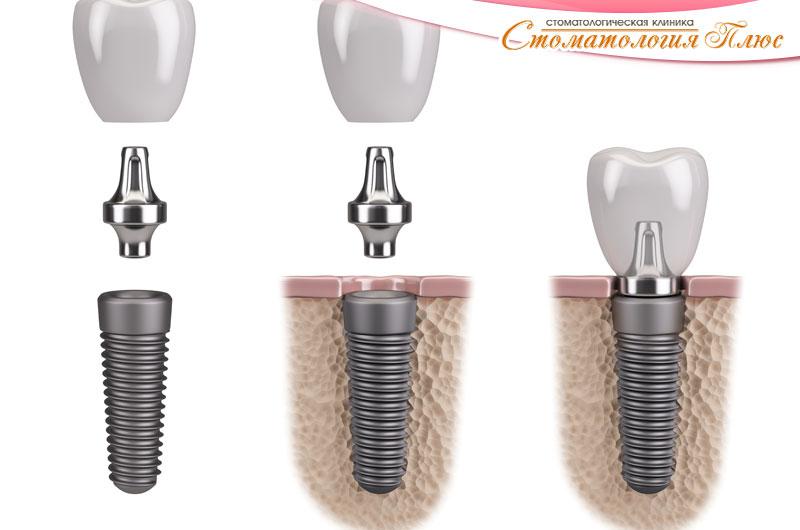 Протезирование зубов на имплантах в Днепре