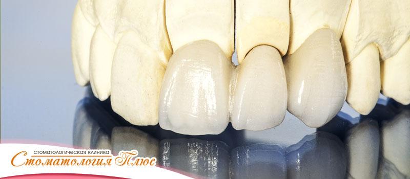 Протезирование зубов в Днепре