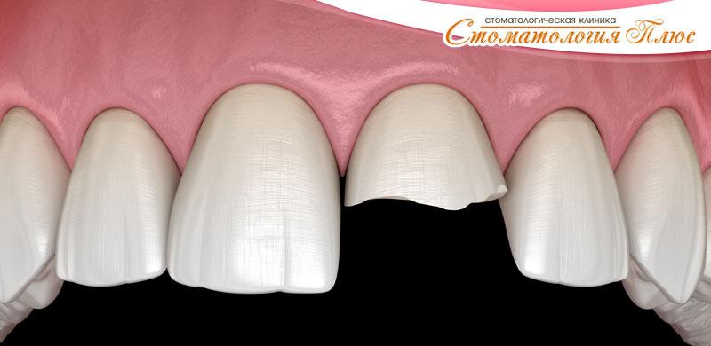 Иллюстрация скола и надо делать реставрацию зуба