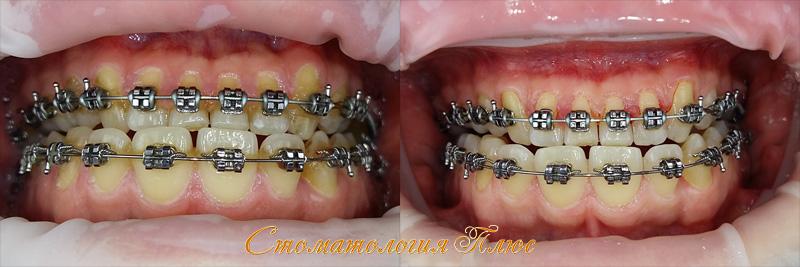Результат чистки зубов в стоматологии у пациентов с брекетами. Технологии АирФлоу и ультразвук
