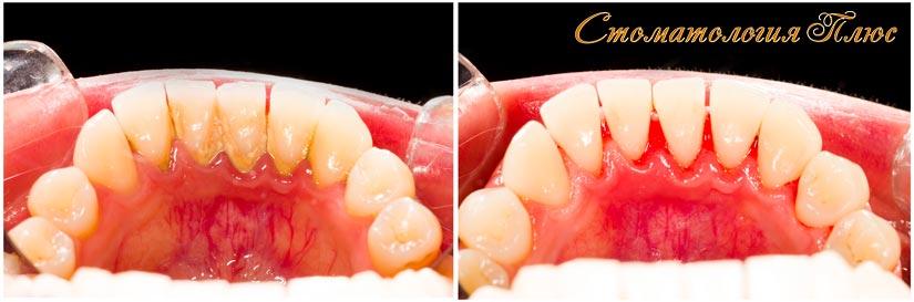 Фотография результатов процедуры чисти зубов в клинике Стоматология Плюс в Днепре
