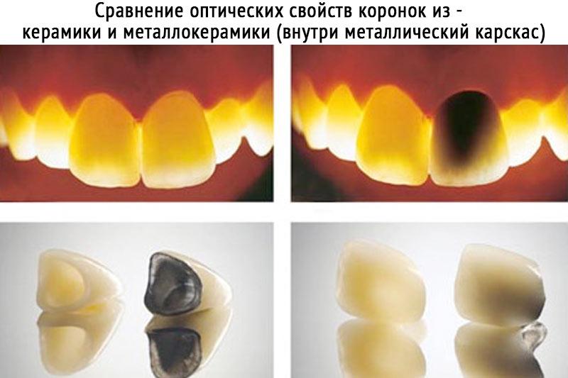 Сравнение металлокерамических и керамических коронок свойства