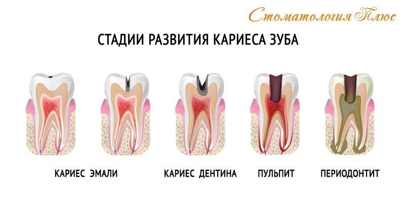 Лечение кариеса зубов в Днепре на разных стадиях в стоматологии