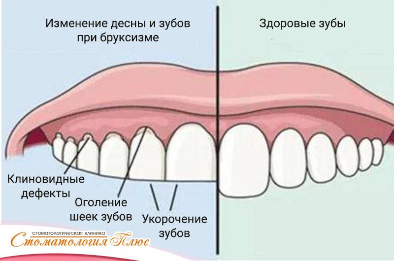 Какие симптомы бруксизма во рту