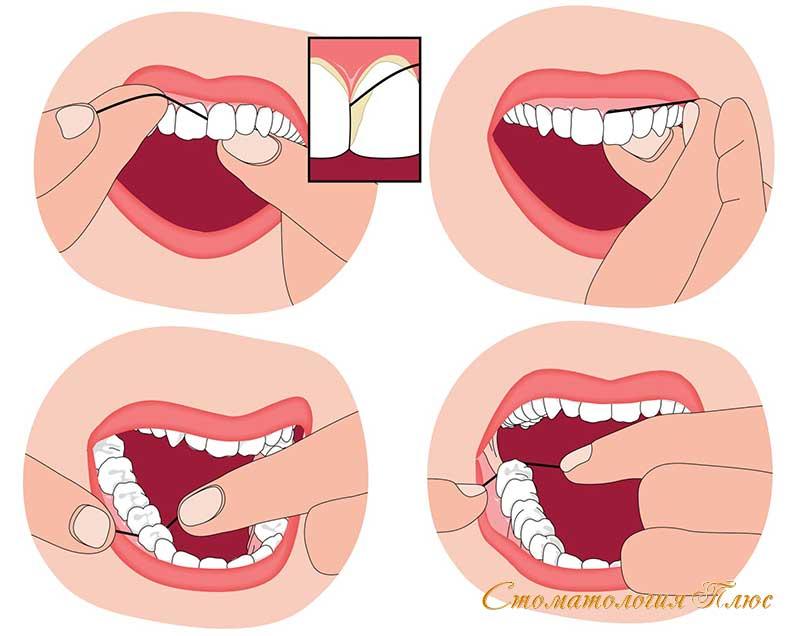 Техника применения зуюной нити для чистки зубов