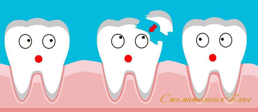 скол зуба и его виды