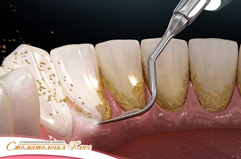 как выглядит ультразвуковая чистка зубов
