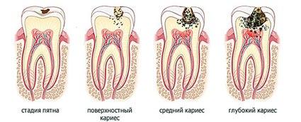 типы и виды кариеса зубов