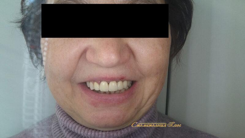 Фотография примеры работы стоматологов при лечении пациента с утратой зубов в Днепр