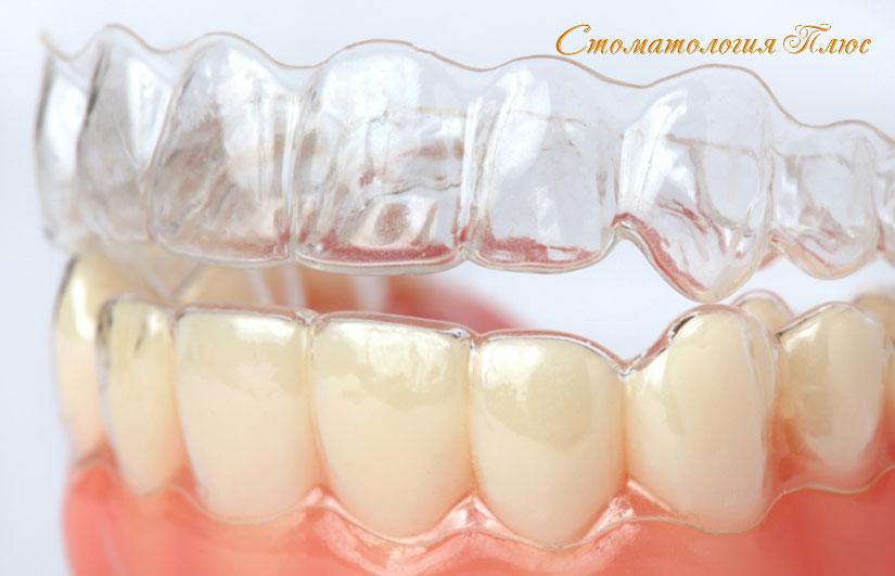 Капа для отбеливания зубов изготовление в Днепр у стоматолога