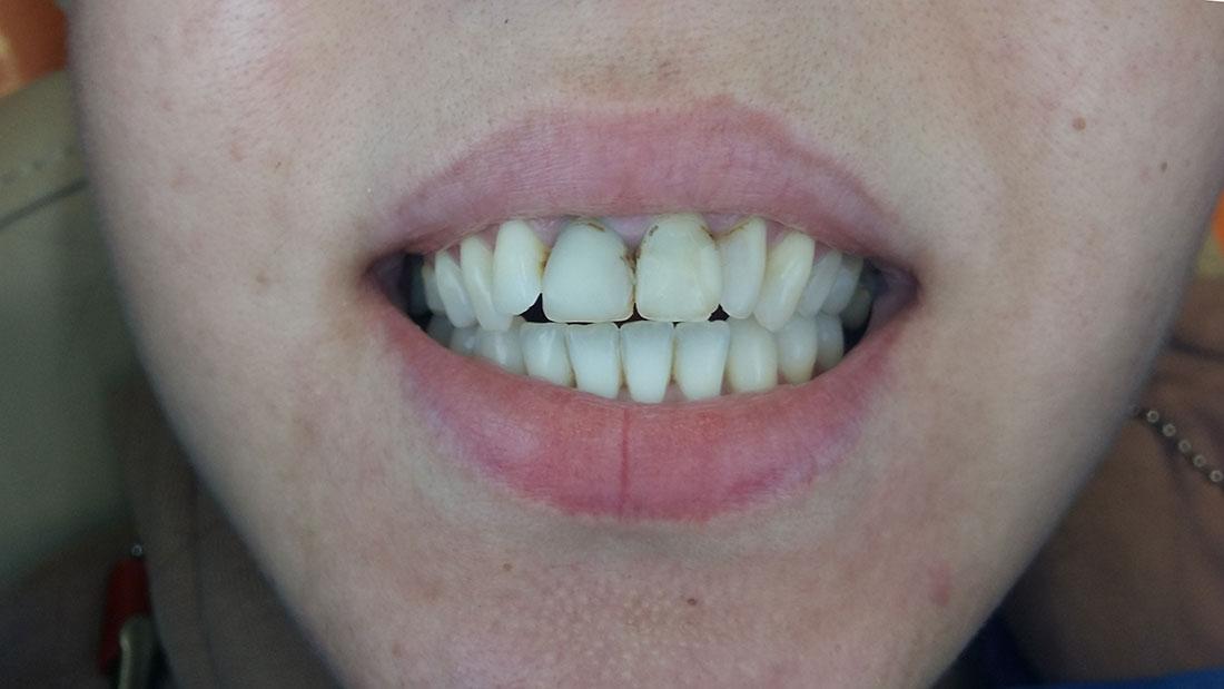 Фотография примеры работ наших стоматологов в Днепре множественный кариес зубов