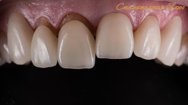 Пример керамической коронки изготовленной в стоматологии в Днепре