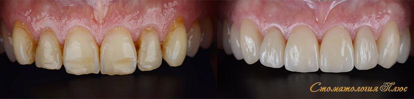 Зубы пациента до и после установки виниров в Днепр