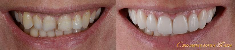 Виниры Днепр фото до и после установки