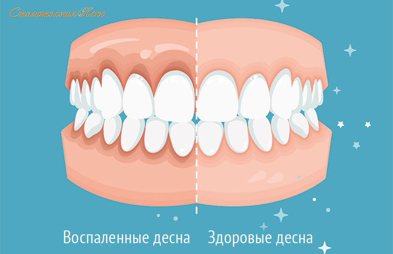 Налет на зубах и воспаление десны