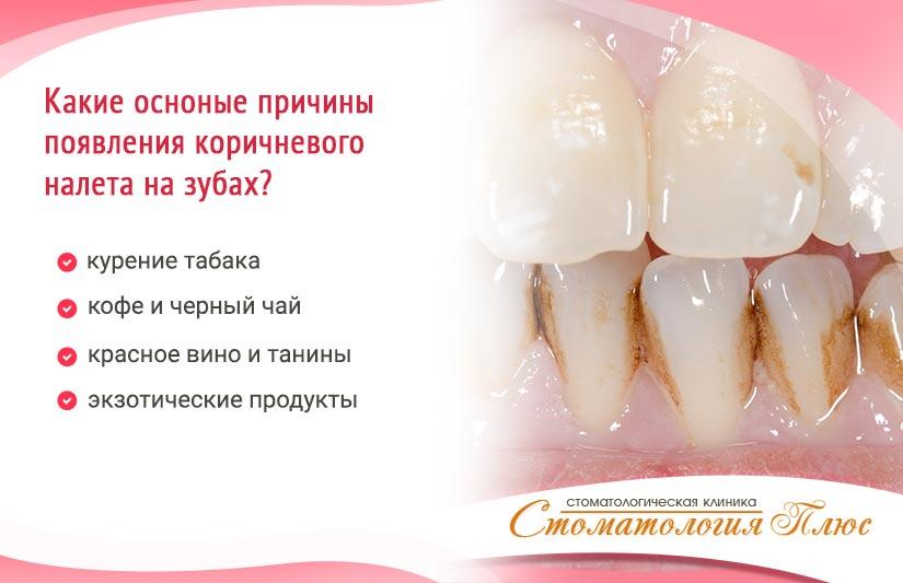 причины темного налета на зубах коричневого
