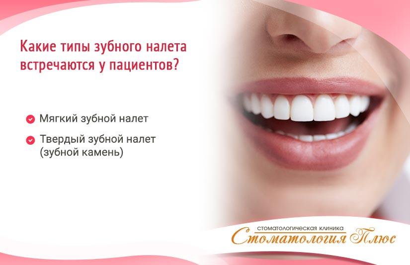 типы налета на зубах классификация